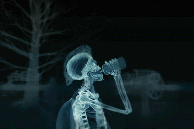 X-ray image of human skeleton during water